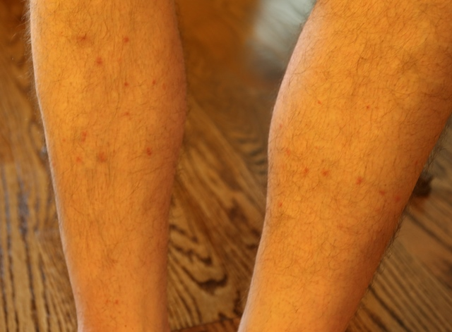 Flea bites on Tim Hollinden leg