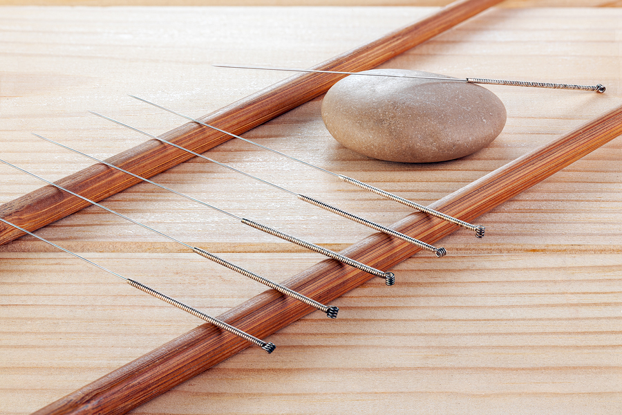 See an Acupuncturist This June